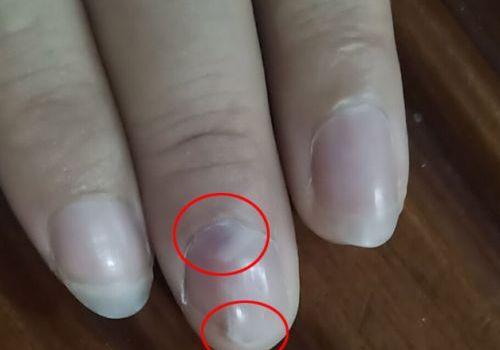 指甲下也会长肿瘤?手指剧痛12年的病症找到了