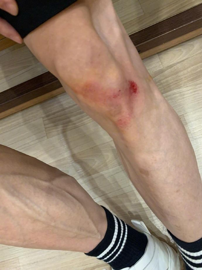 张一山伤情怎么样了?运动摔伤膝盖,晒伤疤照自嘲上了年纪